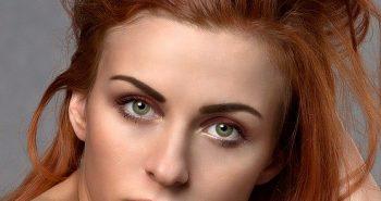 השתלת שיער לנשים – מומלץ מאוד