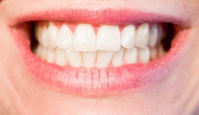 הלבנת שיניים בטורקיה