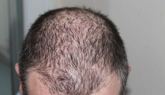 השתלת שיער בארץ